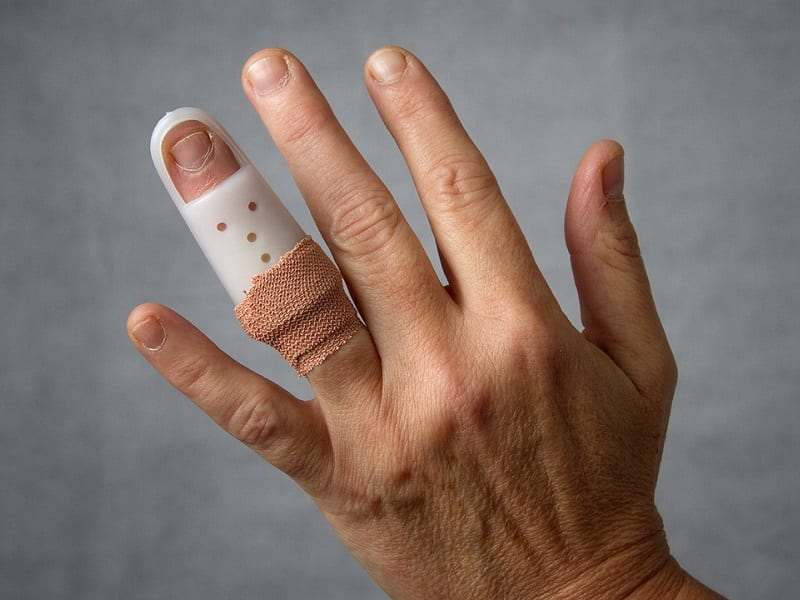 Ring Avulsion And How To Avoid It